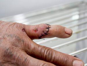 Hand-injury-300x228